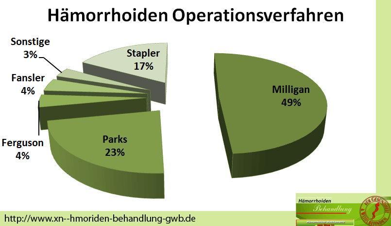 Diagramm Angewandte Hämorrhoiden Operationsmethoden