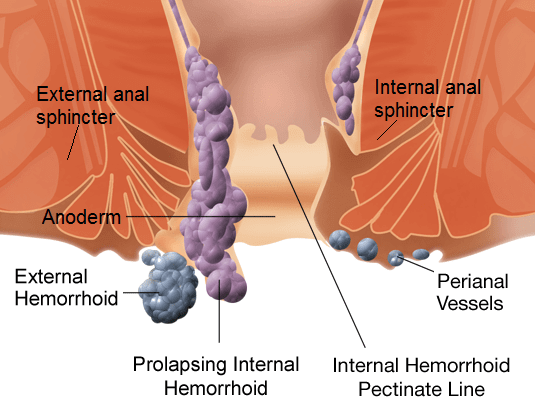 hämorrhoiden grade operation
